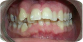 fixiing crooked teeth, braces for teeth, before